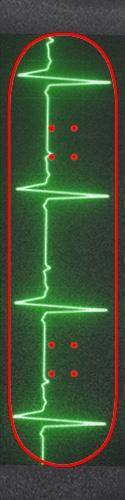 ekg Custom skateboard griptape